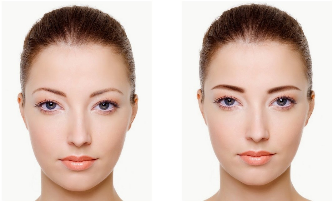 5 Amazing Before And After Eyebrow Transformations Cyberlink